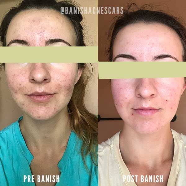hyperpigmentation results with banish acne scars