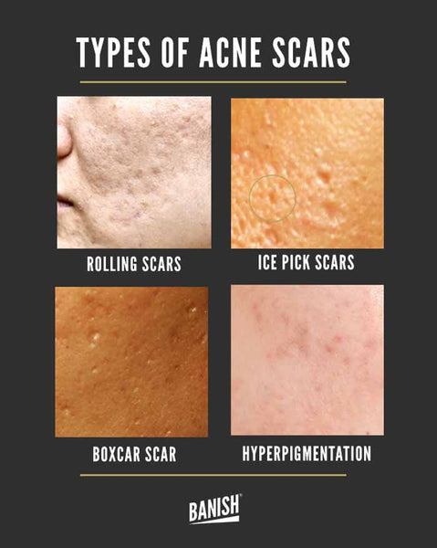 types of acne scars infographic