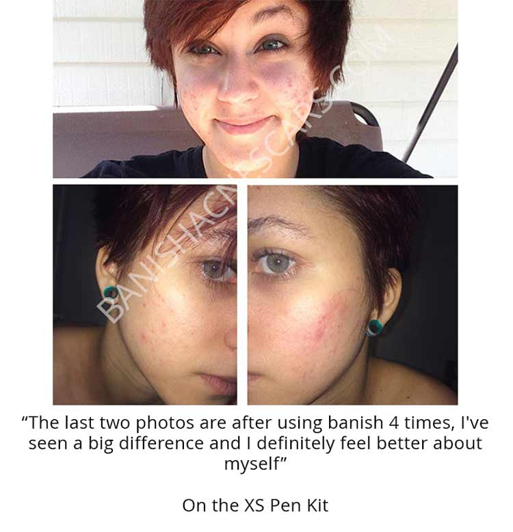 banish acne scars results