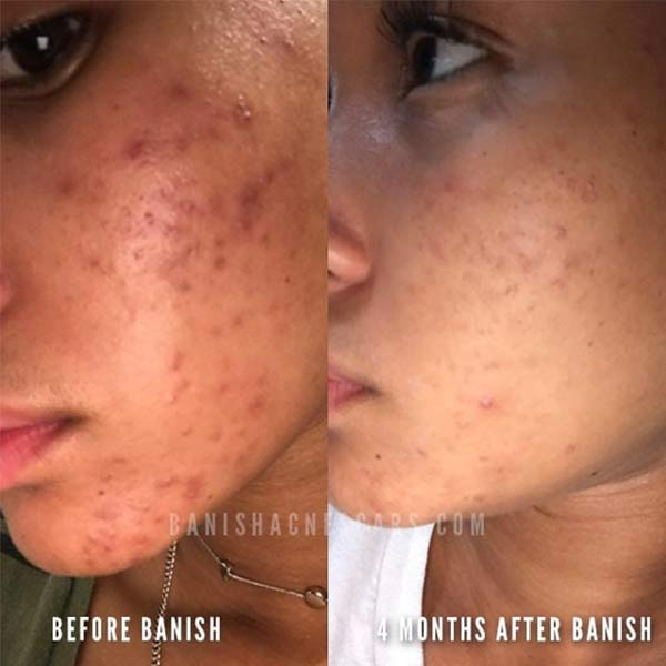 acne scars before after on dark skin