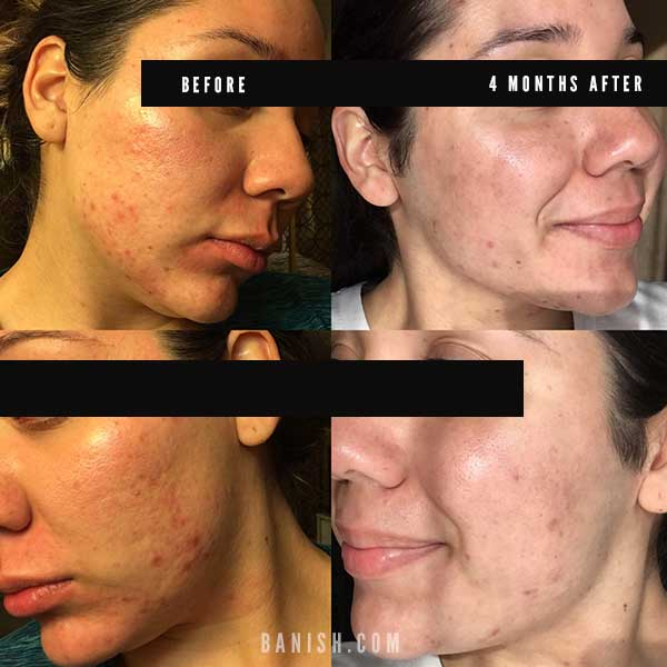 before after acne progress photo with Banish