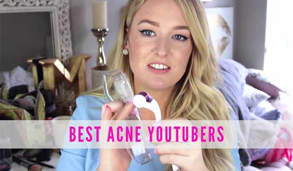 best_acne_youtubers_marissa_lace