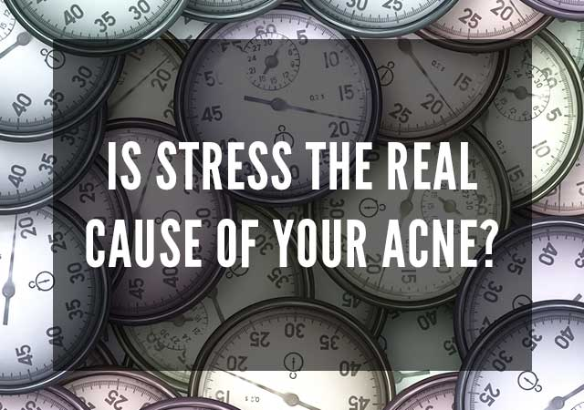 Stress cause acne