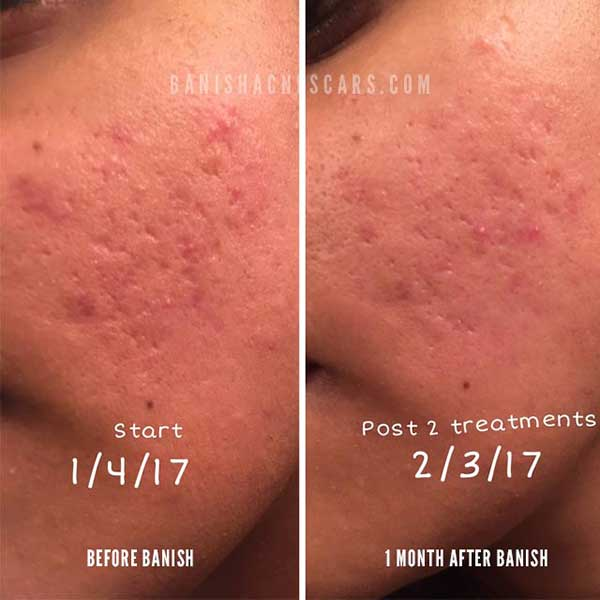 acne scar progress on indented scars