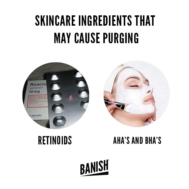 purging skincare ingredients