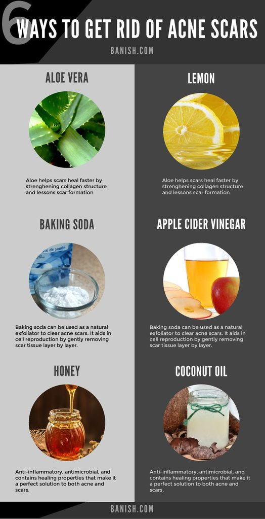 natural ways to get rid of acne scars infographic