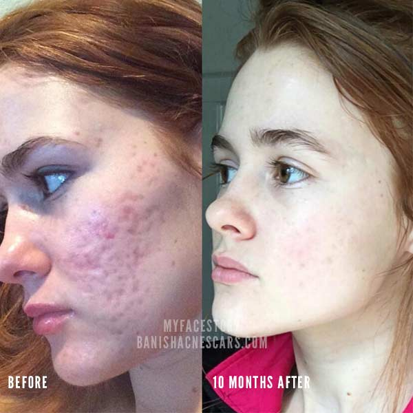 acne scars before and after myfacestory