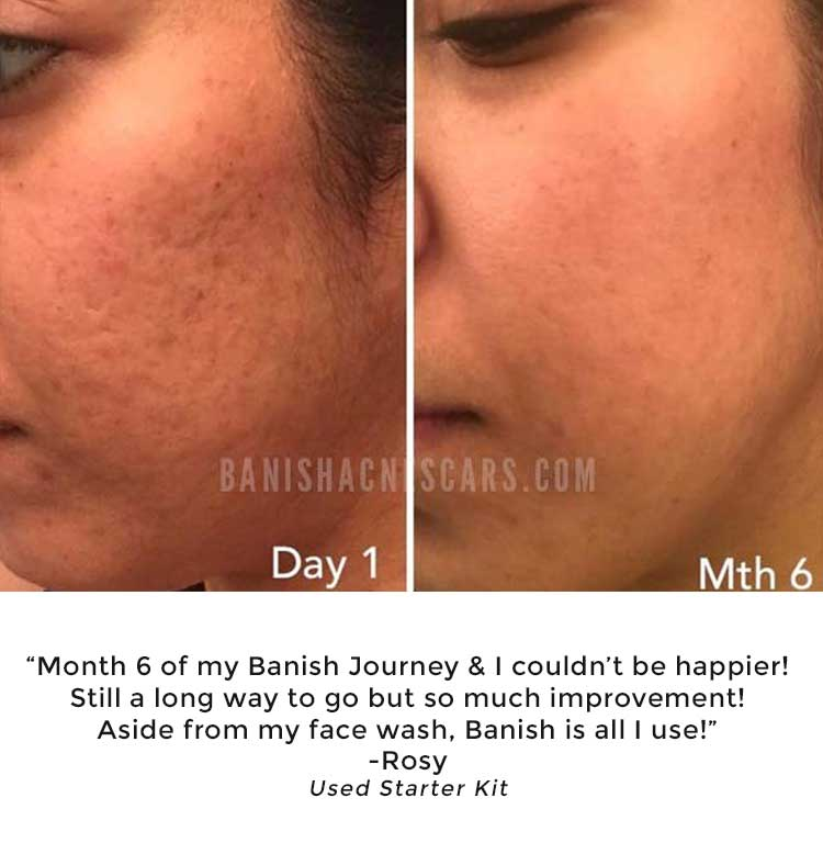 banish acne scars acne scar treatment with youtube reviews