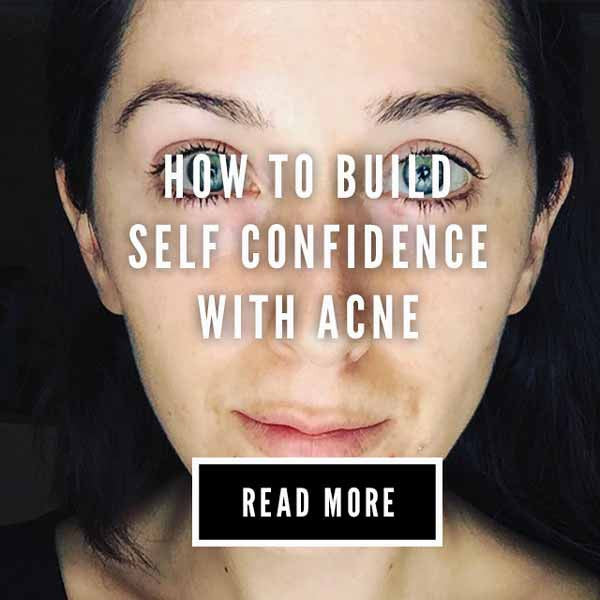 self confidence with acne