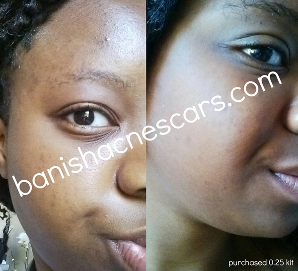 before after banish acne