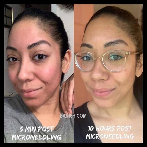 woman showing her before and after results with microneedling