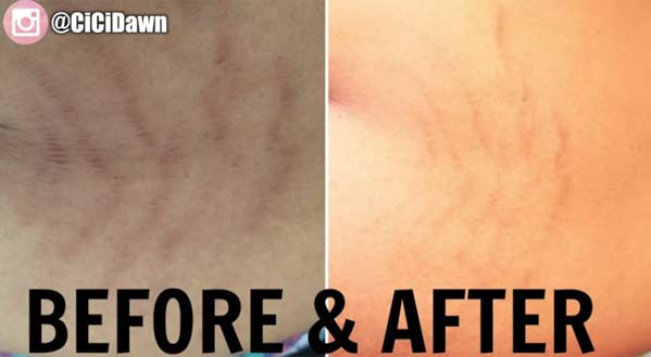banish kit on stretch marks results