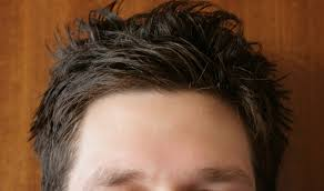 man showing his forehead