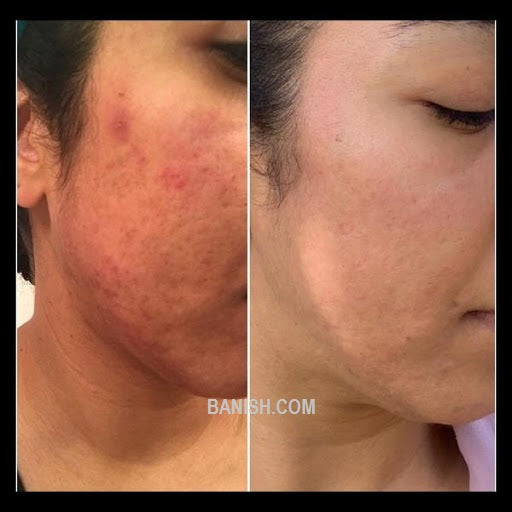 before and after results of right cheek