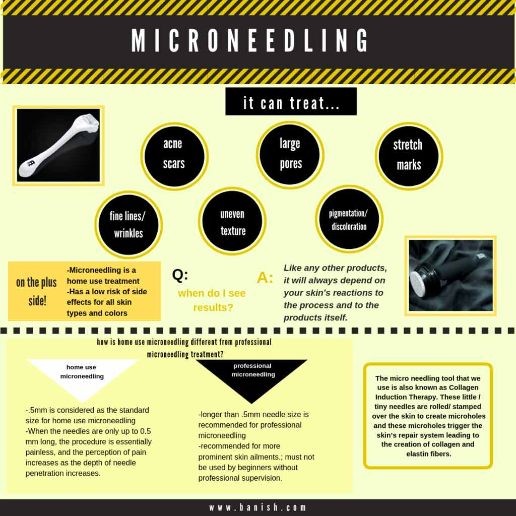 what is microneedling infographic