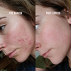 banish before and after scarring and active acne kit