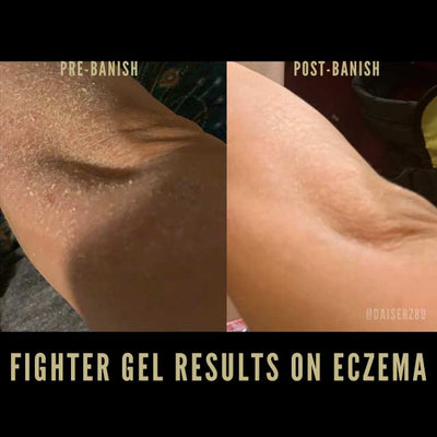 fighter gel for eczema