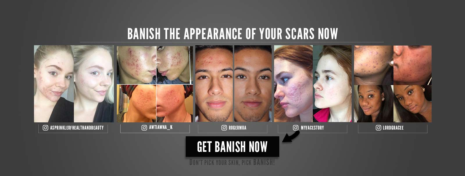 THE ONLY PLACE TO PURCHASE AUTHENTIC BANISH™ KITS - Banish