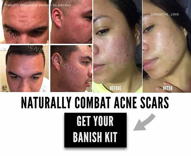 banish acne scars got rid of acne scars