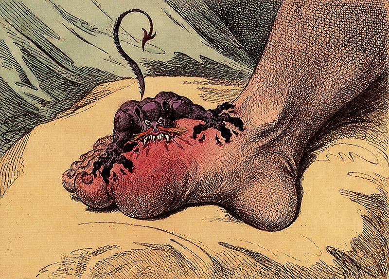 The Gout (1799)