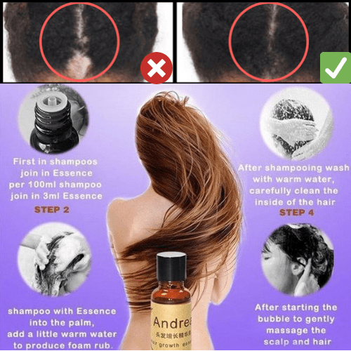 #1 Natural Hair Regrowth Solution - Effective Hair Regrowth