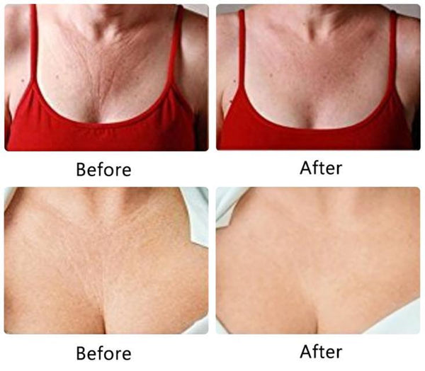 NEW Anti-Wrinkle Silicone Chest Pad