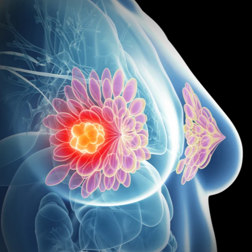 tumor in woman's breast with BRCA gene in dna test