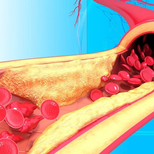 Human red blood cells traveling down a clogged artery and blood vessel