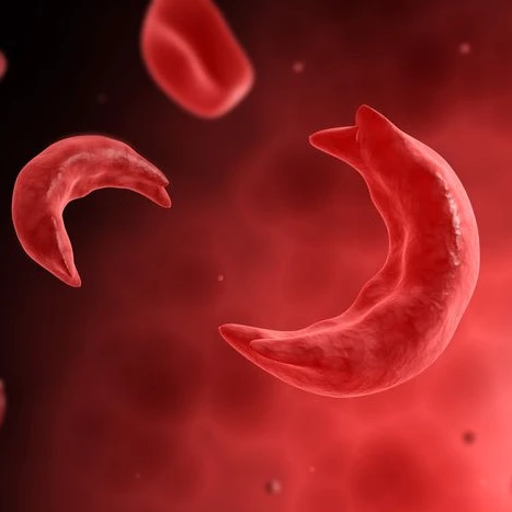 sickle cell anemia and sickle cells next to normal red blood cells