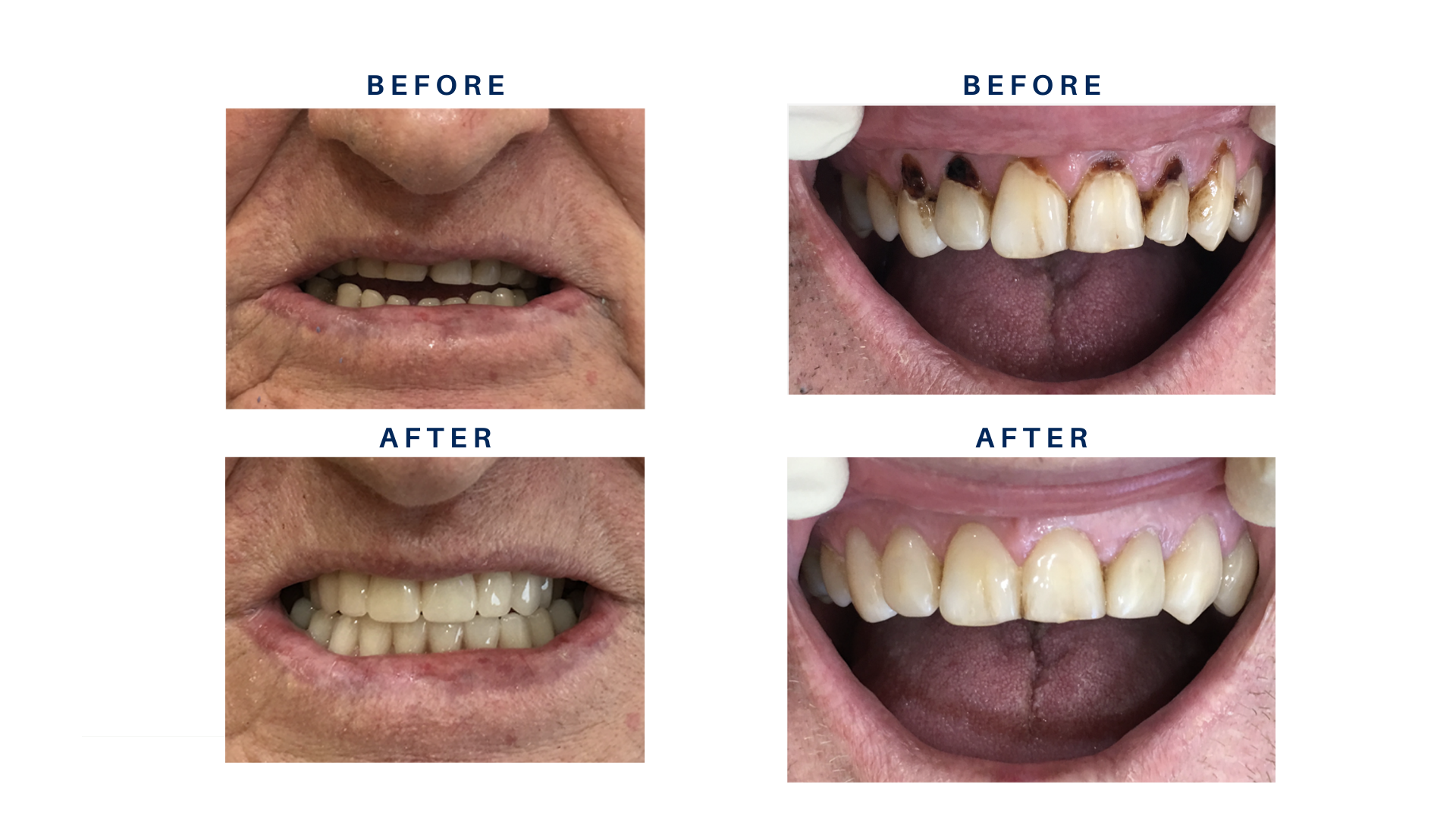 Before and After Pictures dental work done by Dr Mahi