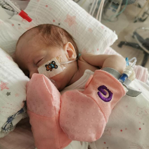 anti scratch mitts used by a preemie baby to stop tubes being pulled out