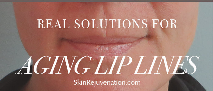 Aging Lip Lines: Laser, Profractional, Ultrasonic, and Home Care