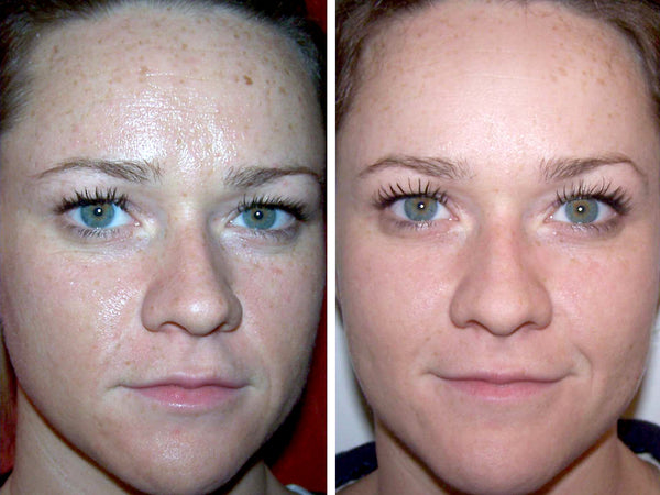 Before and after a jessner peel treatment