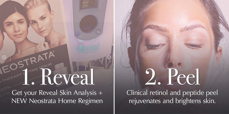 Peel and Reveal Spa Package