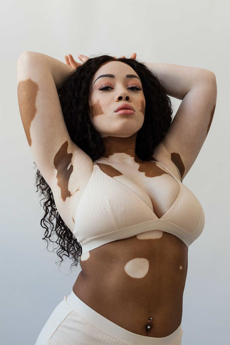 Pretty Different: The beauty of vitiligo