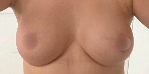 normalize boobs