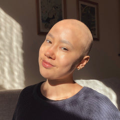 Photo of Maddie when she lost her hair