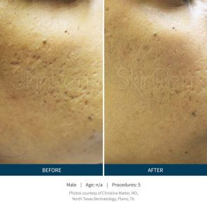 Microneedling Package BUY 3 GET ONE FREE!