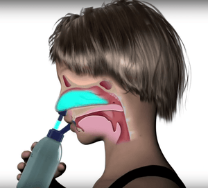 "Nasal Saline Irrigation ""works as well as endoscopic sinus surgery"""