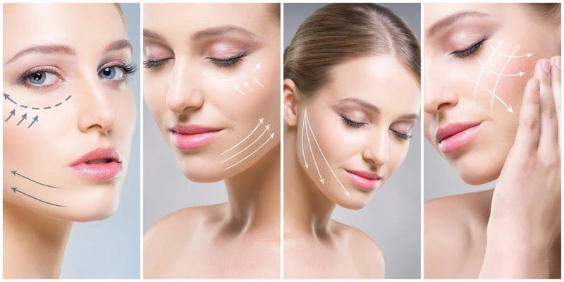RADIESSE-Facelift Sculpture Non-Invasive