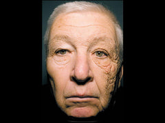 Trucker accumulates skin damage on left side of his face after 28 years on the road