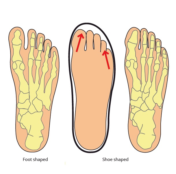 THE SCIENCE OF FOOT DYSFUNCTION AND CURE