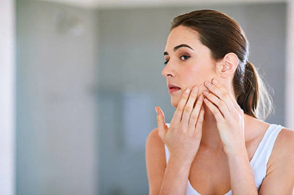 SOS Pimples and Redness: How to Effectively Fight Pimples