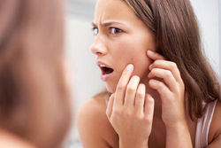 Skin Picking Disorder: Why Expressing Pimples Can Be Addictive