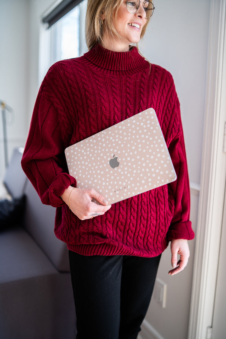 Honey Macbook skin