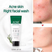 some by mi acne clear foam cleanser aha bha pha