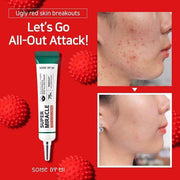 Somebymi Super Miracle Spot All Cream (acne spot care)