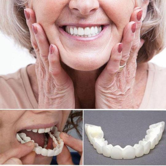 (50% Off - Today Only) Perfect Smile Snap-On Braces