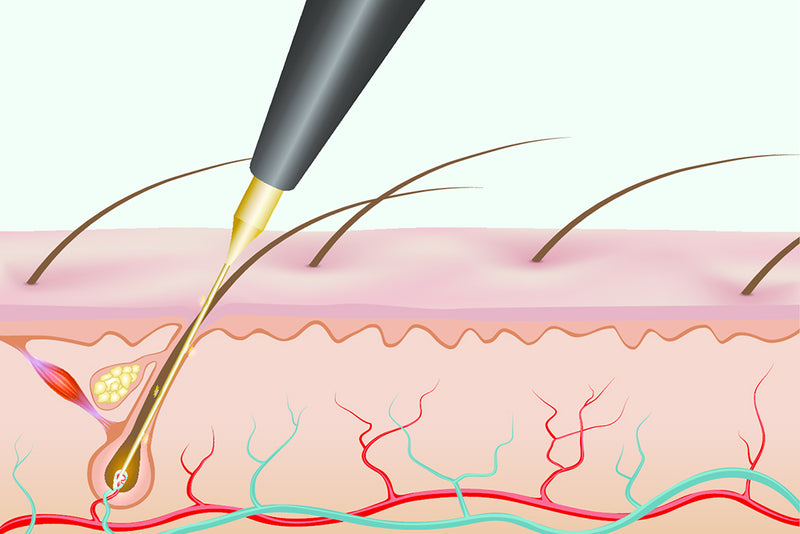electrolysis pen penetrating a hair root