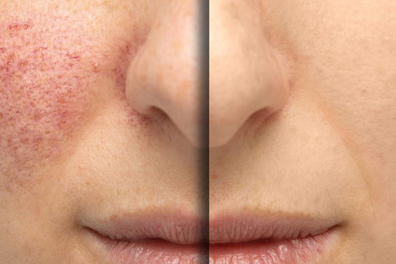 Facial thread vein removal